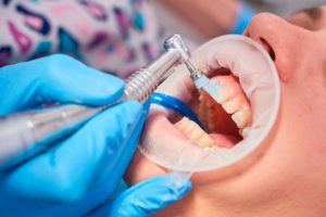 Dentální hygiena Praha - Zubní lékařství Praha 10 - Zubař Praha - Stomatologie Praha - 00cdad2078ac60f3f6e2492be324e129