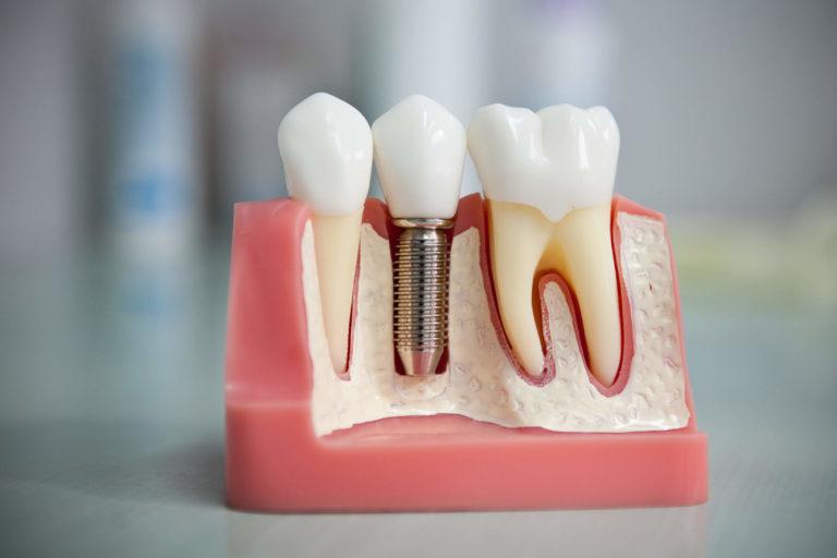 - Zubní lékař Praha Clinic+ - IMG 7151 768x512 - Chirurgická stomatologie