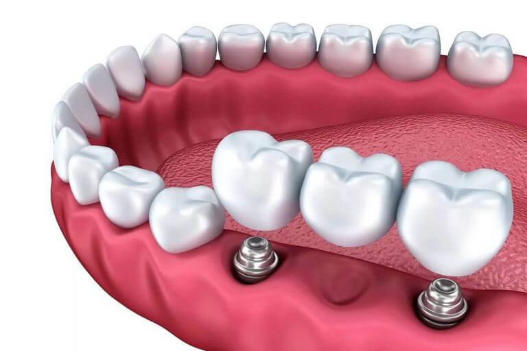 Implantologie Praha - Clinic+