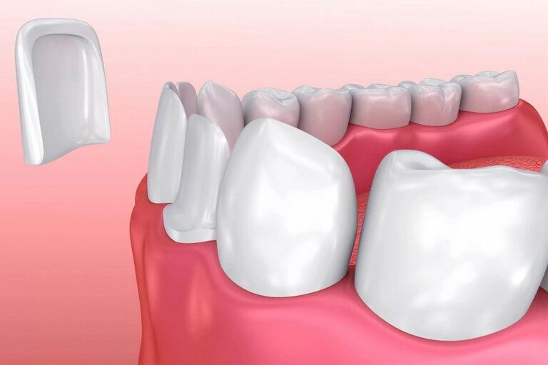- Zubní lékař Praha Clinic+ - Keramická rekonstrukce zubů - Estetická stomatologie