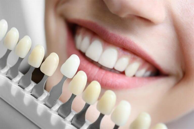 - Zubní lékař Praha Clinic+ - Kosmetická rekonstrukce zubů - Estetická stomatologie