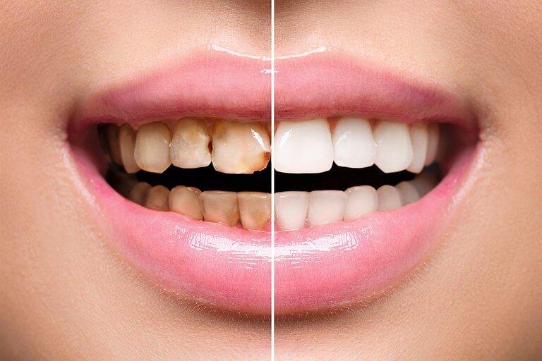 - Zubní lékař Praha Clinic+ - Mikronáhrady zubů - Ортопедическая стоматология