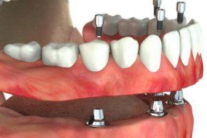Trvalé zubní náhrady Clinic+