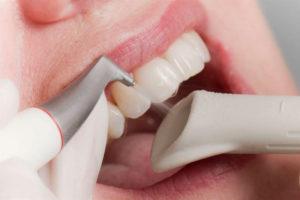 - Zubní lékař Praha Clinic+ - p566369 300x200 - Dentální hygiena