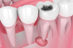 - Zubní lékař Praha Clinic+ - Léčení zubních cyst 300x200 - Терапевтическая стоматология