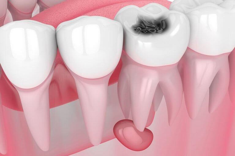 - Zubní lékař Praha Clinic+ - Léčení zubních cyst - Терапевтическая стоматология