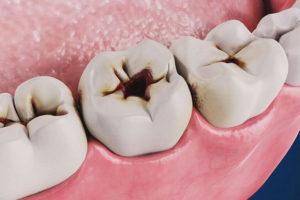 - Zubní lékař Praha Clinic+ - Léčení zubních kazů 300x200 - Терапевтическая стоматология