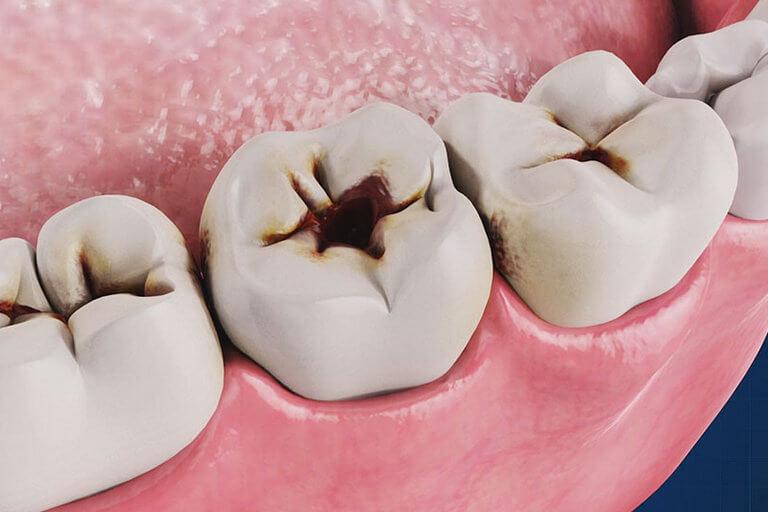- Zubní lékař Praha Clinic+ - Léčení zubních kazů - Терапевтическая стоматология