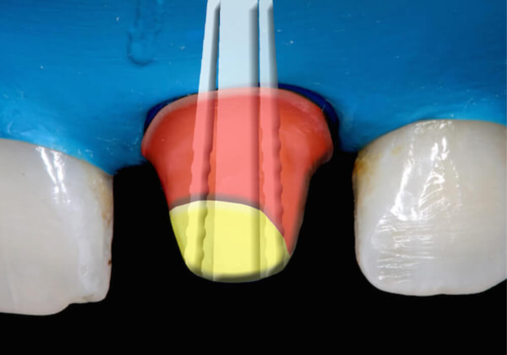 Způsoby léčení kořenových kanálků pomocí čepů
