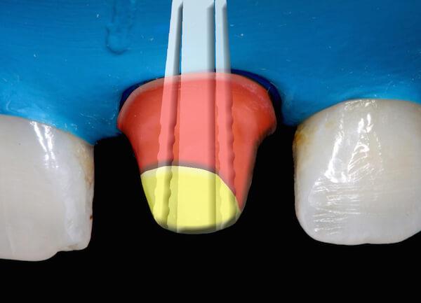 Způsoby léčení kořenových kanálků pomocí čepů - Zubař Praha 10 - Foto 13
